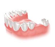 歯を1っぽん失った場合