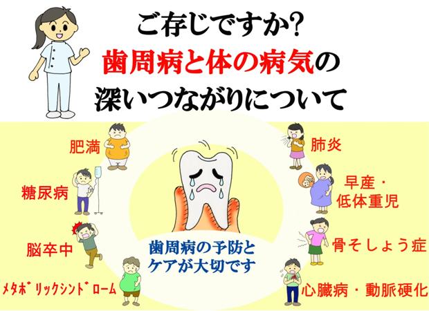 ご存知ですか?歯周病と体の病気の深いつながりについて