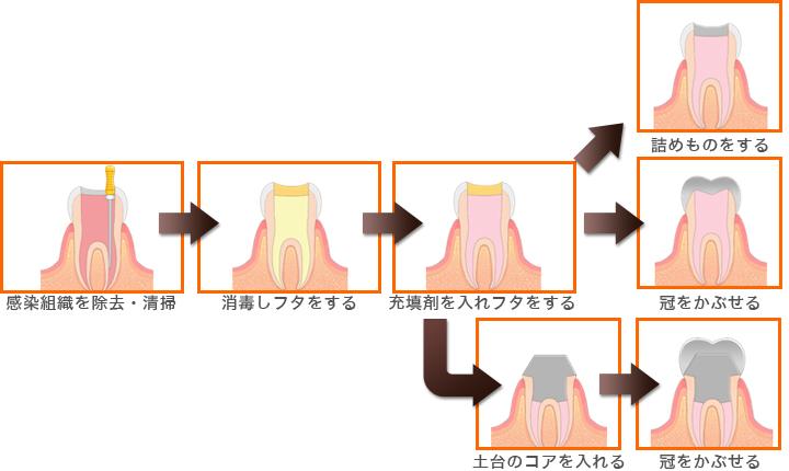 歯髄炎の場合