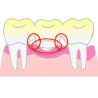 赤丸は歯垢が残りやすい場所