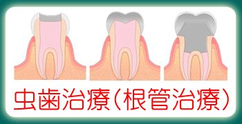 虫歯治療で解決